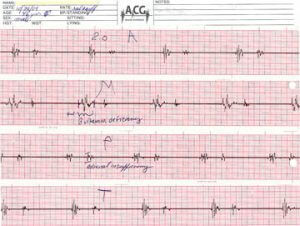 the acoustic cardiograph (ACG)